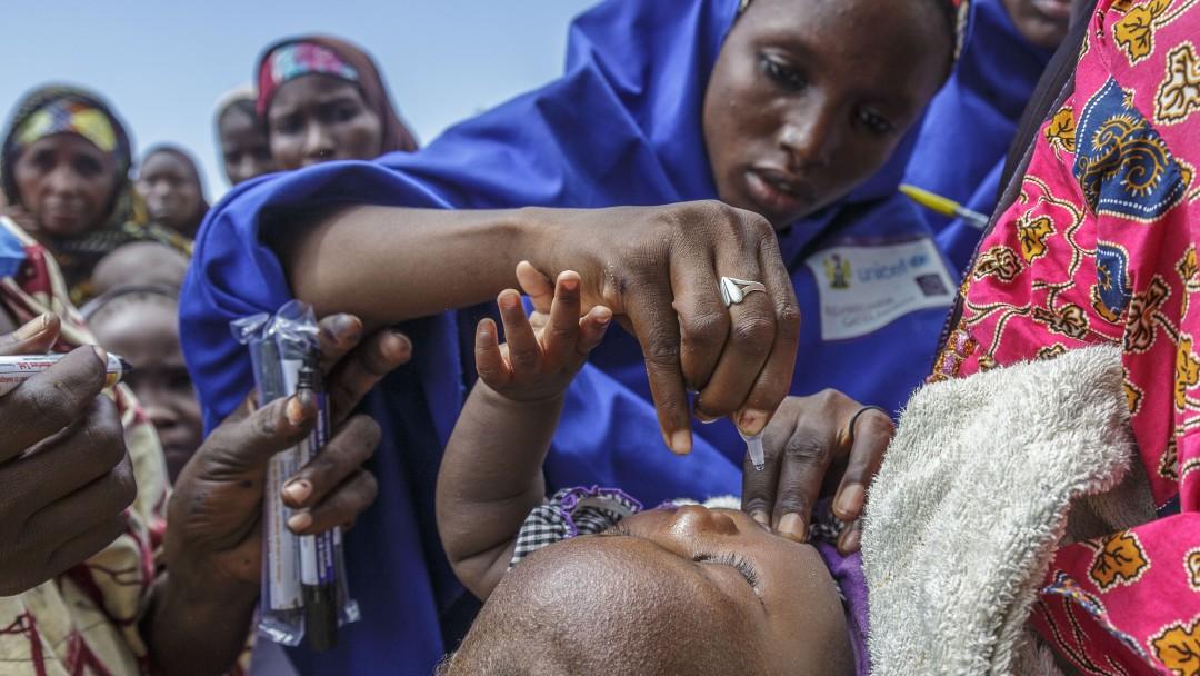 A Baby get an polio immunization